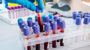 Qual a relevância dos exames laboratoriais?